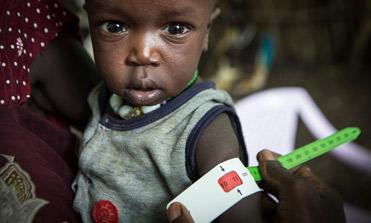 Medidor MUAC para detectar casos de desnutrición severa
