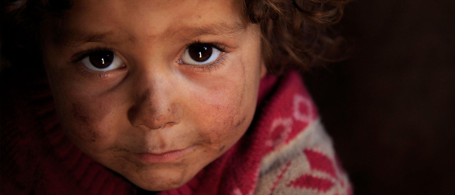 Fátima tiene 3 años y es una víctima de la Guerra