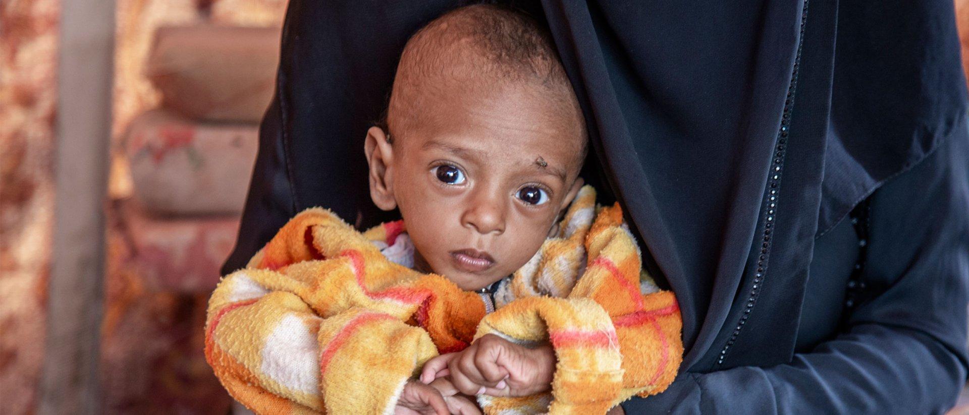 Nabil vino con 8 meses, sufría desnutrición aguda severa