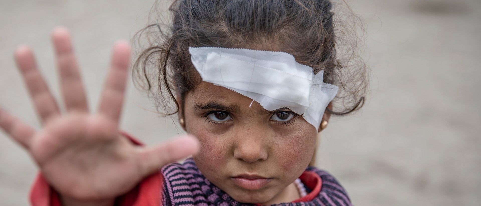 niña herida en la guerra