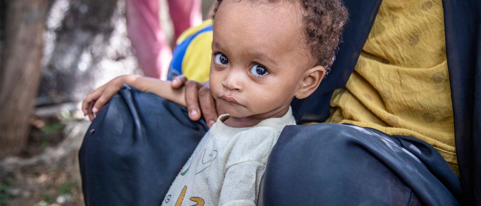 Noura tiene 15 meses y sufre de desnutrición severa